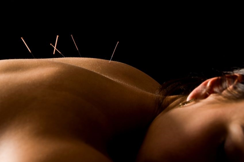 //chirocarewellnessclinic.com/wp-content/uploads/2016/06/acupuncture-3.jpg